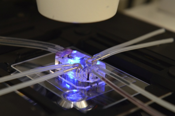 organ-on-a-chip for studying asthma