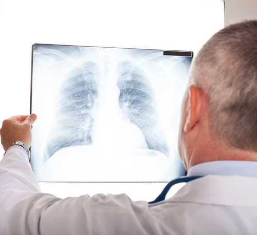 Video-Assisted Lung Cancer Surgery Shown To Be Safe, Effective