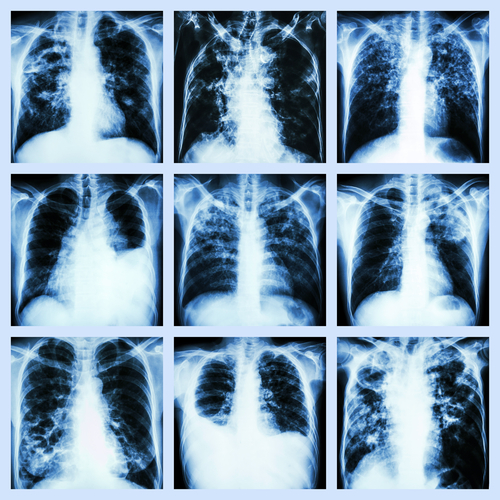 New MRI Approach Reveals Bronchiectasis' Key Features Within the Lung