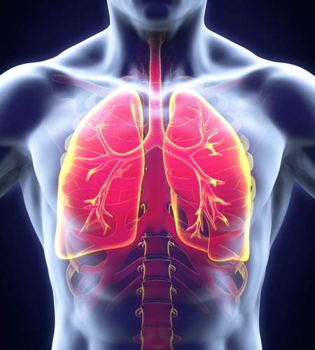 COPD and Bronchiectasis: Similarities and Differences - Lung