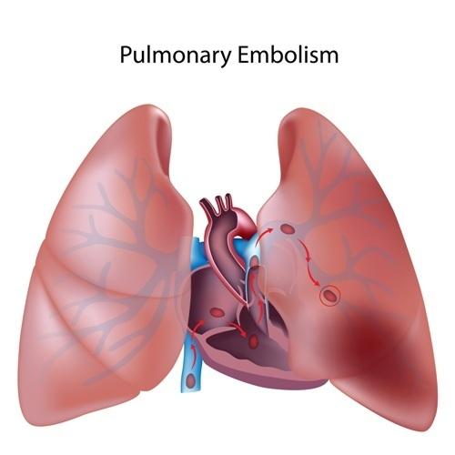 Researchers Develop New Diagnostic Tool To Detect Pulmonary Embolisms in Patients Over 50