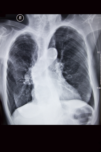chronic bronchitis x-ray