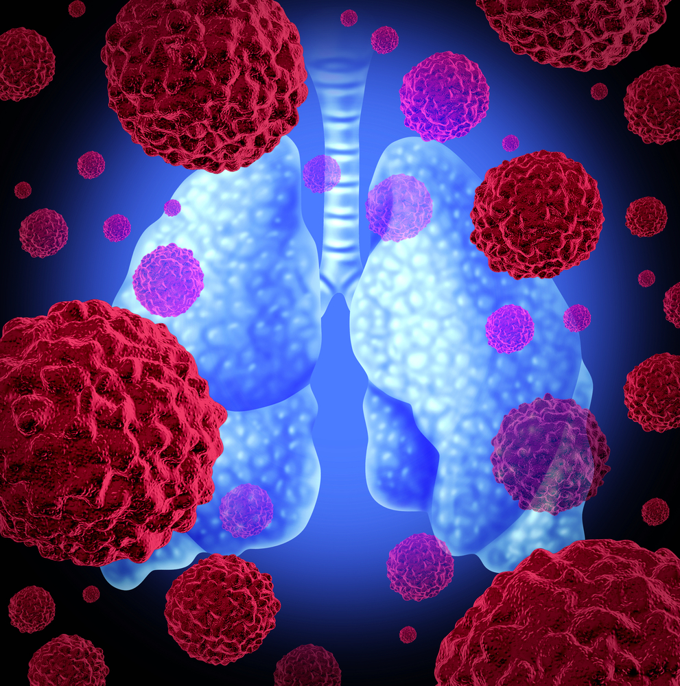 Scleroderma Patients Have Lower Survival Rates Even with Early Lung Cancer Diagnosis