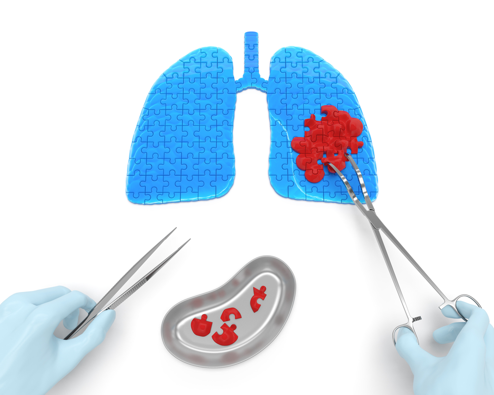 Surgery/Chemotheray/Radiotheray Combination May Increase Patients with Advanced Lung Cancer Survival