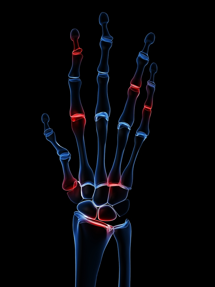 Rheumatoid Arthritis-Bronchiectasis Patients Exhibit Increase in Disease Severity