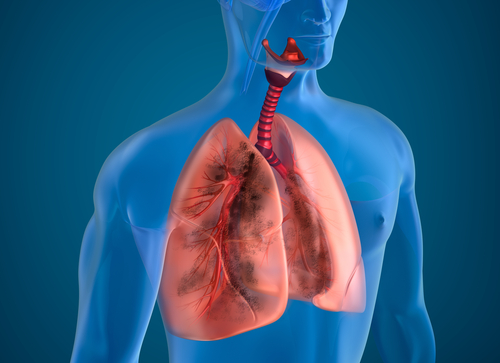 Airway Clearance Therapy Helps in Range of Lung Diseases