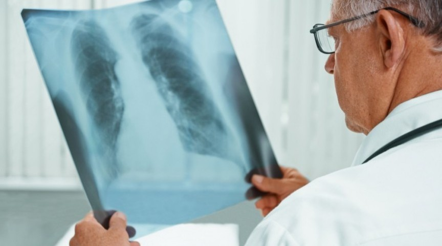 Clinical Trial Enrolling Lung Cancer Patients to Evaluate Two-Drug Combination