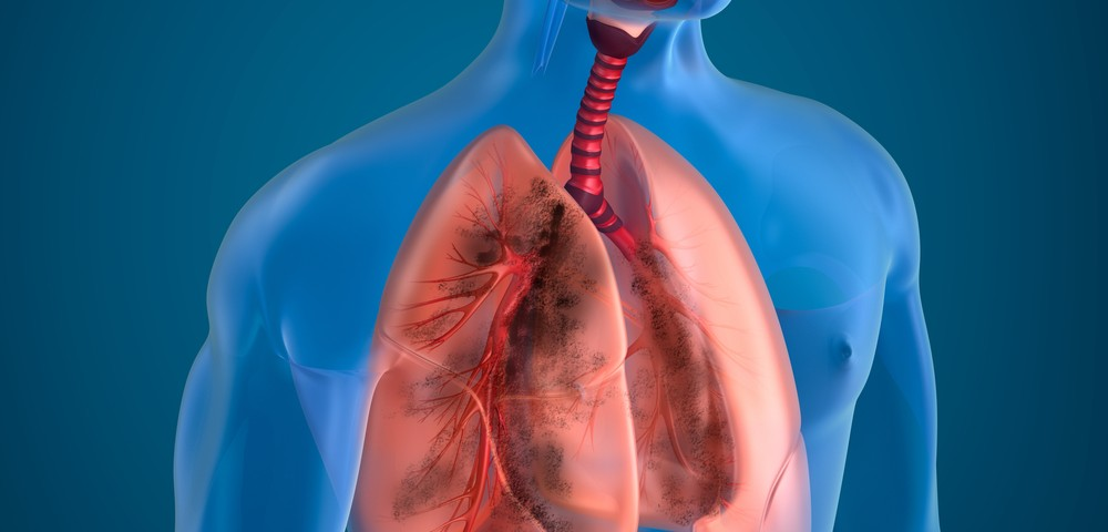 Small Protein M10 Could Help Prevent Lung Fibrosis, According to Animal Study