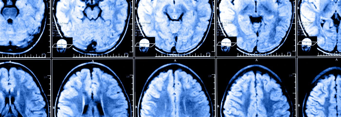 COPD May Cause Structural Brain Changes Related to Fear, Pain, Breathlessness
