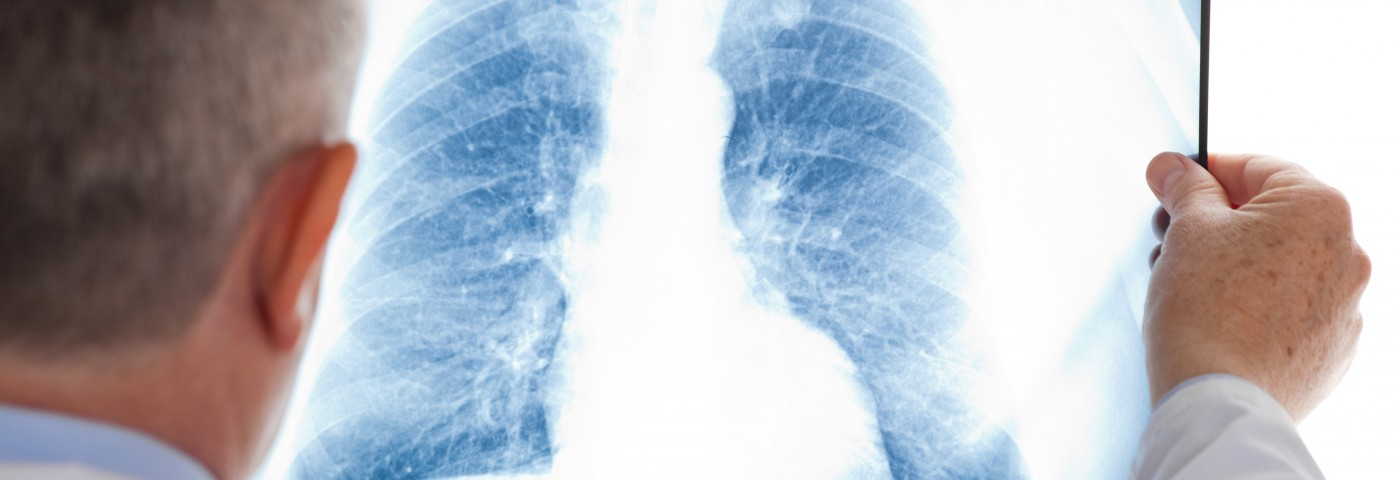 Positive Preclinical Results for Lung Cancer Drug Announced at Annual Meeting of Cancer Research