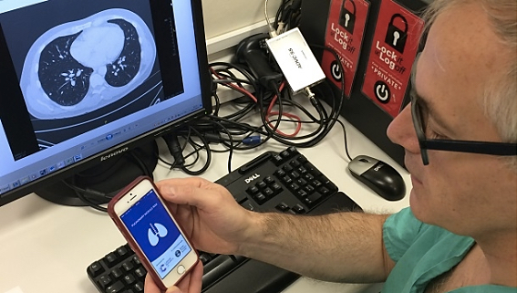 New Smartphone App Helps Doctors Assess Cancer Risk in People with Lung Nodules
