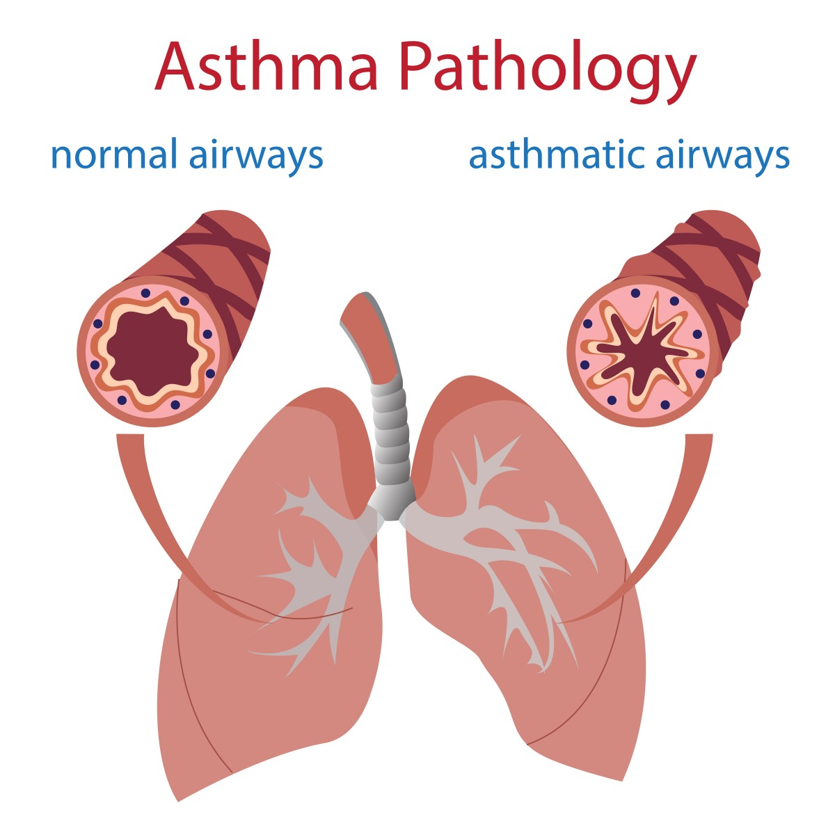 In Severe Asthmatics, HMGB1 Protein Causes Lung Airways to Narrow ...